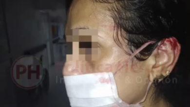 Photo of Casi la dejan sin oreja por una agresión física contra ella